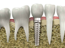 Dental Implants Pueblo Colorado